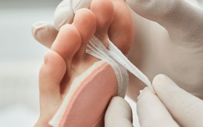 Jak usunąć odciski na stopach?