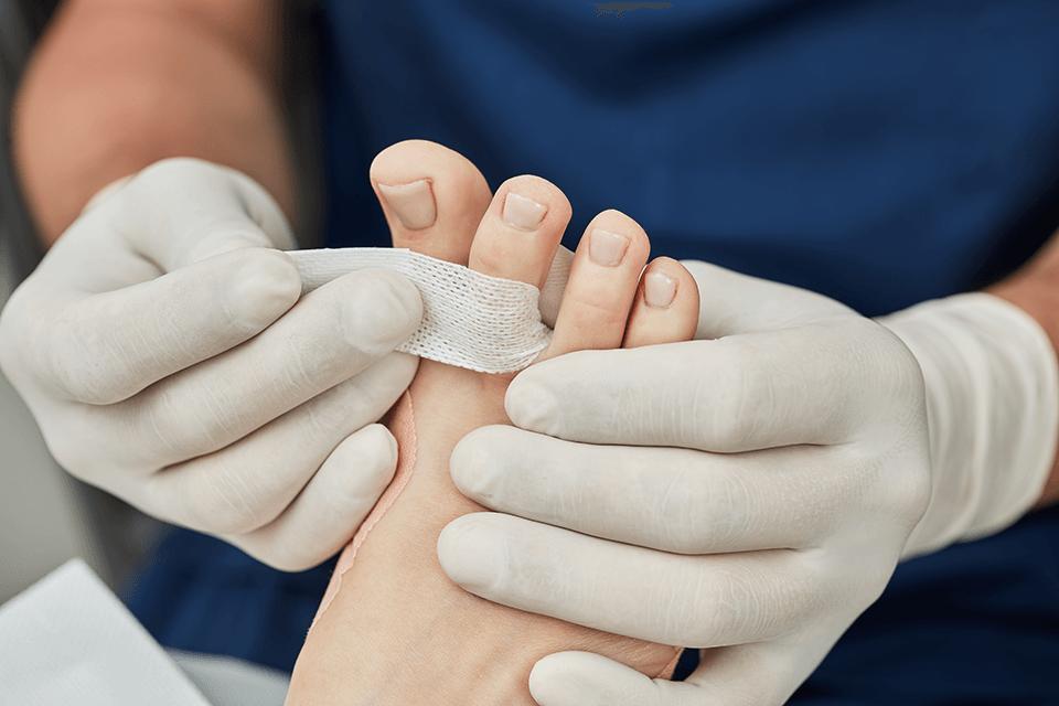 Metoda Arkady – innowacyjna metoda w leczeniu wrastających paznokci!
