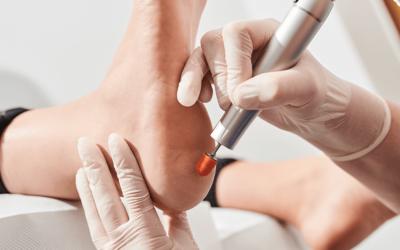 Klinika Satin – jak usuwać modzele i zrogowacenia?