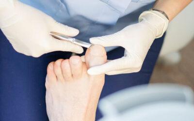 Zwierciadło :: Grzybica stóp i paznokci – jak z nią walczyć?