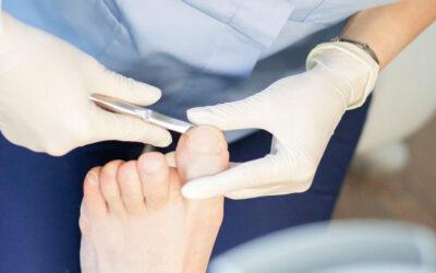 Różne metody leczenia wrastających paznokci – zabieg chirurgiczny nie jest jedynym rozwiązaniem